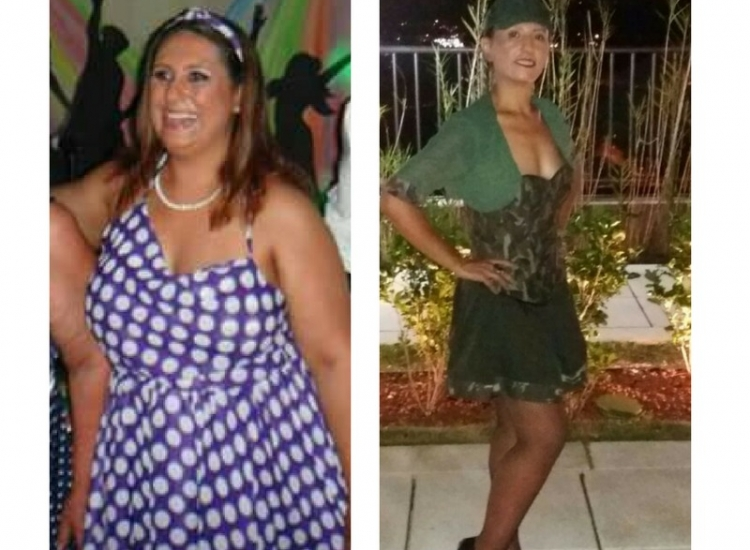 Paciente emagrece 40 quilos sem inibidores de apetite