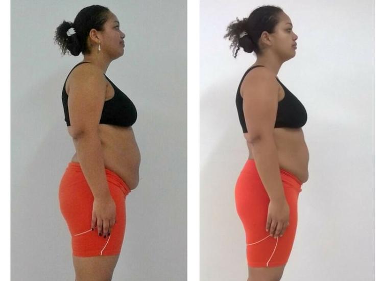 Paciente elimina 6 quilos em 20 dias com a Dieta dos Reis